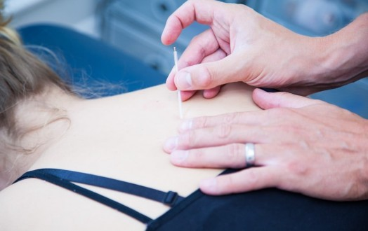 An image showing a qualified physiotherapy using acupuncture and dry needling techniques on a female patient