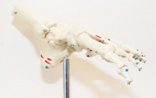 Image showing a model of an ankle joint